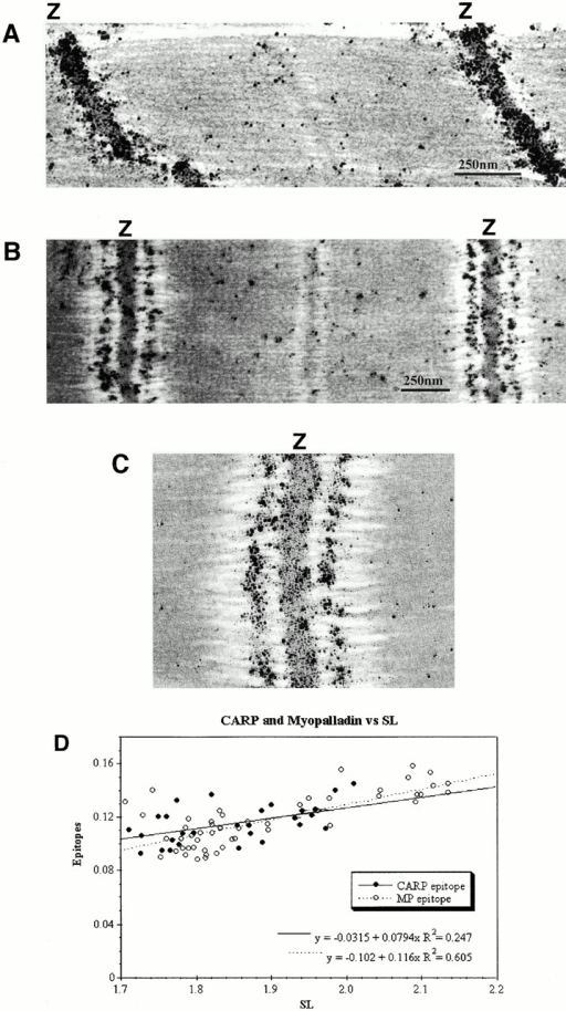 Immunoelectron microscopy reveals colocalization of myopalladin and CARP in mouse cardiac myofibrils. (A–C) Isolated myofibrils from mouse were prepared and stretched according to Trombitás et al. 1995; immunoelectron microscopy with affinity-purified antimyopalladin antibodies reveals that myopalladin is detected both within the periphery of the Z-line (A) and in the central I-band region (A–C). In stretched sarcomeres (B), the Z-line to I-band distance increases. A, unstretched; B, slightly stretched; C, high magnification view of Z-disc in stretched myofibrils. (D) The distances of I-band–bound CARP and myopalladin from the Z-disk were measured from immunoelectron micrographs at different sarcomere lengths (29 micrographs were analyzed for CARP; 54 micrographs for myopalladin). Both CARP and myopalladin colocalize in the central I-band and their epitope distances (in μm) from the Z-disc were dependent on sarcomeric length (SL).