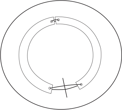 Schematic of the Intacs segments coupled with suture at both ends. The radial corneal incision is depicted inferiorly prior to suture closure.