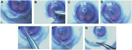 The first segment was inserted completely (A). The second segment was passed through the same side of the incision and used to push the first segment through the channel (B). The needle of a double armed 9-0 nylon suture was then passed through the second segment inferior islet (B). The second segment inferior islet was then engaged with a Sinskey hook and advanced (C). By passing the Sinskey hook through the other side of the channel, the first segment inferior islet is engaged (D), and the islet is pulled out of the wound (E). The other arm of the 9-0 nylon is then passed through the posterior surface of the islet of the first segment with attention not to allow the suture to cross or twist (E). The segments are then positioned to be equidistant from the incision (F) and then a surgical knot is thrown with the desired tension (G).
