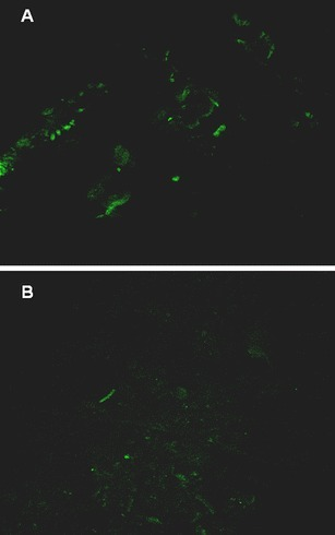 Photographs of microscopic images of fluorescent gfp-tagged transconjugant P. putida G25 colonising the root surface of a 54-day-old seedling of white mustard (a) and those surviving in the rhizosphere (b). The photographs were obtained with a confocal laser scanning microscope