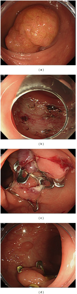 Endoscopic closure of an artificial ulcer with conventional clips and an OTSC system. (a) A large tumor, measuring 55 mm in diameter, located in the upper rectum. (b) A large mucosal defect after colorectal ESD. (c) Complete closure was performed using an OTSC system. (d) The endoscopic view at postoperative day 333.