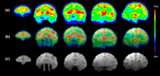 (a) Color codedPET images show accumulation of [18F]3 inthe selected five coronal slices of the monkey brainat the time point 5–15 min after the injection of radioactivity.These images show the highest accumulation of [18F]3 in the caudate, putamen, thalamus, and several corticalareas. (b) Fused PET and MR images from (a) and (c). (c) T1-weightedcoronal MR images show the anatomical structures of selected brainareas. (n = 1) 189 MBq [18F]3 (37 ng/kg) was injected.