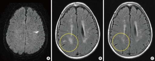 A 68-year-old female presented with left MCA territorial infarction (A). Regression of white matter hyperintensity is observed on FLAIR at 21 months of follow-up (B, initial scan; C, follow-up).