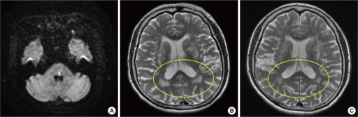A 72-year-old female presented with left pontine infarction (A). Regression of white matter hyperintensity is observed on T2-weighted MRI at 7 months of follow-up (B, initial scan; C, follow-up).