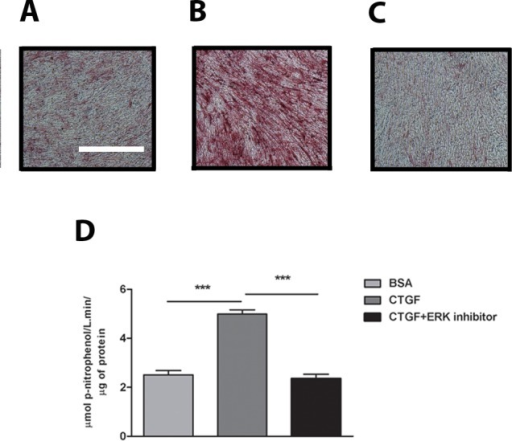 Inhibition of ERK prevents osteogenic differentiation in cells cultured on CTGF matrix.Alkaline Phosphatase (ALP) staining of osteoblasts cultured on 1% BSA (A) or 2 μg/ml CTGF coated plates in the absence of ERK inhibitor (B) and in the presence of ERK inhibitor (C) for 14 days. Scale bar = 2 mm. (D) ALP activity of osteoblasts cultured on BSA or CTGF coated plates, quantified at day 14 of culture and normalized to total protein content; n = 9 wells.