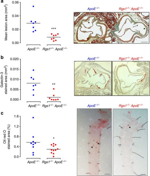 Rgs1 deficiency reduces atherosclerosis and macrophage content in ApoE−/−mice.(a) Atherosclerotic plaque in the aortic roots of 9-week-old mice on a chow diet. Microscopy of massons trichrome stained aortic root lesions. (b) Galectin-3-positive macrophage content in the aortic roots of 9-week-old mice on a chow diet. Microscopy of Galectin-3-stained aortic root lesions. (c) En face atherosclerotic plaque in the aortas of 16-week-old mice on a chow diet. Microscopy of en face Oil Red O staining of aortic arches of descending aortas. Each symbol represents an individual mouse (n=7–8 per group). Scale bars indicate 0.25 mm for aortic roots and 1 mm for aortas. Arrows indicate atherosclerotic lesions. Values are expressed as mean±s.e.m. ***P<0.001, **P<0.01, *P<0.05 calculated using the Student's t-test.