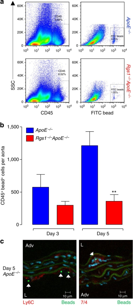 RGS1 promotes leukocyte accumulation in the aortic wall during Ang II-induced vascular inflammation.Flow cytometric analysis of bead-labelled aortic leukocytes in ApoE−/− and Rgs1−/−ApoE−/− mice that received Ang II infusion at 0.8 mg kg−1 per day for 5 days following fluorescent bead labelling of circulating inflammatory monocytes. (a) Representative dot plots shown for gated aortic cells of each positive population from ApoE−/− and Rgs1−/−ApoE−/− mice with representative percentages. Labels on both axes are on a log scale. (b) Quantification of the number of bead-labelled CD45+ cells in aortas of Ang II-infused mice at days 3 and 5. (c) Immunofluorescence microscopy of abdominal aortas from ApoE−/− mice at day 5 after Ang II infusion and bead labelling stained for Ly6C and 7/4 (red), 4′,6-diamidino-2-phenylindole (blue). Arrows indicate the presence of cells containing fluorescent beads (green) on the luminal side (L) of the aorta or within the internal elastic laminar (green autofluorescence). Adv, adventitia. **P<0.01 calculated using the Student's t-test (n=5–7 per group. Data in b are expressed as mean±s.e.m.).