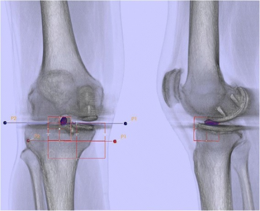 Bone tracer uptake quantification of a SPECT/CT in standardized anatomical areas in an asymptomatic patient one year after UKA.