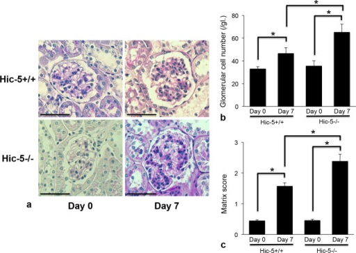 Histological assessment of glomerular lesions in experimental glomerulonephritis (GN).(a) Periodic acid-Schiff staining in Habu venom-induced Hic-5+/+ and Hic-5-/- GN mice. On day 7, Hic-5+/+ GN Habu mice exhibited glomerular cell proliferation. Hic-5-/- Habu GN mice showed severe mesangial cell proliferation and intensive glomerular matrix expansion compared to Hic-5+/+ Habu GN mice. Original magnification x200, scale bar = 50 μm. (b) The number of glomerular cells was counted in 30 glomeruli per section and calculated. The data are shown as the means ± SD. *, P<0.01. There was no significant difference between Hic-5+/+ day 0 and Hic-5-/- day 0. (c) A matrix score was assessed in 30 glomeruli per section and calculated. The data are shown as the means ± SD. *, P<0.01. There was no significant difference between Hic-5+/+ day 0 and Hic-5-/- day 0.
