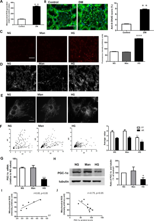 Decreased PGC-1α expression is associated with a hyperglycemia-induced increase in mitochondrial fragmentation and ROS generation.A: Kidney mitochondrial ROS production in the control and diabetic rats (DM). ROS production was identified by the fluorescent probe Mitochondrial ROS. B: Immunofluorescent micrographs of 8-hydroxy-2-deoxyguanosine (8-OHdG) in the control and diabetic rats (DM). (Original magnification: ×400). Scale bar: 25 μm. C: Intracellular ROS production was determined by the mitochondrial fluorescent probe in RMCs exposed to normal glucose (NG), mannitol (Man), and high glucose (HG). Scale bar: 100 μm. D, E and F: Mitochondrial morphology was determined using the MitoTracker probe in RMCs exposed to NG, HG, and Man. D: Mitochondrial morphology at x200. Quantitative analysis of mitochondrial morphology was conducted using a computer-assisted morphometric analysis application for the calculation of form factor (FF) and aspect ratio (AR) values. Scale bar: 10 μm. G: Real-time RT-PCR assay for PGC-1α mRNA relative to the NG values. H: Western blotting analysis of PGC-1α expression in NG, HG, and Man. I: A correlation analysis between ROS generation and the mitochondrial morphology parameter, FF. J: A correlation analysis between ROS generation and PGC-1α expression. Data are expressed as the mean ± SD values for 5–10 rats per group or three cells per group, and the experiments were repeated independently at least three times with similar results (**P < 0.01 vs. control or vs. NG).