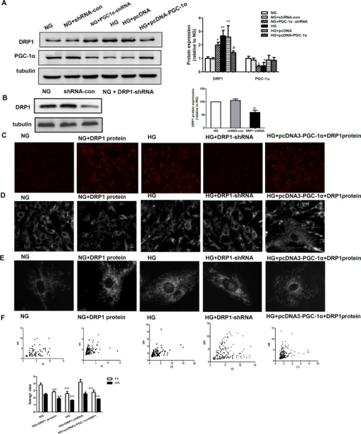 Inhibitory action of PGC-1α on mitochondrial fragmentation occurs via the downregulation of DRP1.A: Western blotting analysis of DRP-1 and PGC-1α expression in the NG, NG+shRNA-con, NG+PGC-1α shRNA, HG, HG+pcDNA3, and HG+pcDNA3-PGC-1α groups. Equal protein loading was confirmed with tubulin antibody staining. Data are presented as the mean ± SD values for three cells per group, and experiments were repeated independently at least three times (*P < 0.05 vs. NG, # P < 0.05 vs. HG). B: Mesangial cells were transfected with DRP1 short hairpin RNA (shRNA) for 48 h, and DRP1 protein expression was detected by western blotting. DRP1 expression was inhibited (~50% reduction) by DRP1 shRNA. C-F: ROS production, mitochondrial morphology changes, and computer-assisted morphometric analyses of mitochondrial morphology in RMCs exposed to normal glucose (NG), NG incubated with DRP1 protein and high glucose (HG) conditions, RMCs transfected with DRP1 shRNA to silence the expression of DRP1 under HG conditions (HG+DRP1-shRNA), and RMCs transfected with pcDNA-PGC-1α to overexpress PGC-1α and exogenous DPR1 protein under HG conditions (HG+pcDNA3-PGC-1α+DRP1). ***P < 0.001,** P < 0.01 versus NG, ## P < 0.01, # P < 0.05 versus HG.