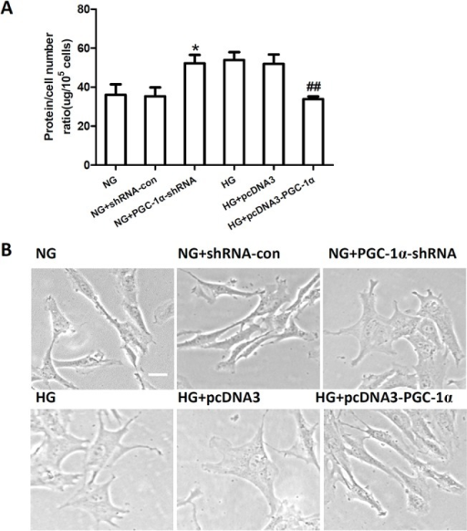 PGC-1α suppresses mesangial cell hypertrophy induced by hyperglycemia.The ratio of total amount of protein to cell number (A) and cell morphology (B) in RMCs incubated in normal glucose (NG) and high glucose (HG) conditions, RMCs transfected with PGC-1α shRNA or shRNA-con under NG conditions (NG+PGC-1α shRNA, NG+shRNA-con), and RMCs transfected with pcDNA3-PGC-1α or pcDNA3 under to HG conditions (HG+pcDNA3-PGC-1α, HG+pcDNA3). Data are represented as the mean ± SD values from three cells per group, and the experiments were repeated independently at least three times (*P < 0.05 vs. NG, ## P < 0.01 vs. HG). Scale bar: 10 μm.
