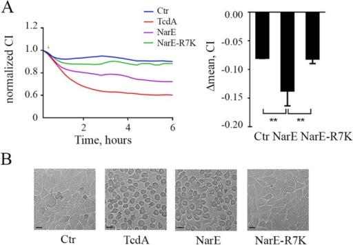 NarE impairs human epithelial monolayer integrity and induces cell rounding.(A) Top left, Chang monolayer was treated either with NarE or NarE-R7K (1μg/ml) and barrier resistance was continuously measured using an electric cell-substrate impedance sensing (xCELLigence) system. TcdA (100 ng/ml) was used as positive control, while saline was used as negative control. CI, Cell Index (arbitrary unit for electric impedance measurement). Top right, Variation of Chang cells CI after 6 h of treatment with NarE or NarE-R7K (1μg/ml). The results are expressed as the difference between normalized CI before agents addition (CI = 1) and CI value after 6 h of incubation averaged from three independent experiments, each performed on duplicate samples. Error bars represent the SD. **, P ≤ 0.01. (B) Effect of NarE treatment on the morphology of Chang cells. Chang cells were incubated at 37°C with NarE, NarE-R7K (1μg/ml), TcdA as positive control (100 ng/ml) or left untreated as control. After 4 hours, pictures were taken to assess the change in morphology. Bar, 20 μm.