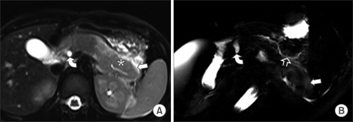 A 4-year-old girl diagnosed with acute pancreatitis. (A, B) Axial single shot fast spin echo (half-Fourier acquisition single-shot turbo spin-echo) T2-weighted image and a single-shot radial acquisition with relaxation enhancement oblique axial image showing diffuse swelling that is worse in the tail of pancreas (asterisk), mild irregular dilatation of the pancreatic duct (open arrow), a dilated common bile duct (curved arrow), and peripancreatic fluid collection (arrow).