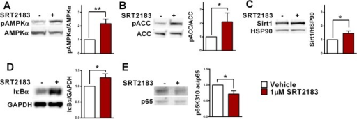 SRT2183 activates AMPK and deacetylates RelA/p65 K310 in RANKL-induced BMMs.(A) The effect of SRT2183 on AMPKα phosphorylation (Thr172). Western blot analysis of pAMPKα and AMPKα in SRT2183- and vehicle-treated osteoclasts 4 days post RANKL stimulation. p- phosphorylated; AMPKα- AMP-activated protein kinase alpha. (B) The effect of SRT2183 on ACC phosphorylation. Western blot analysis of pACC and ACC in SRT2183- and vehicle-treated osteoclasts 4 days post RANKL stimulation. p- phosphorylated; ACC-Acetyl CoA Carboxylase. (C) The effect of SRT2183 on Sirt1 protein level in RANKL-stimulated osteoclasts. Western blot analysis of Sirt1 and HSP90 in SRT2183- and vehicle-treated osteoclasts 4 days post RANKL stimulation. (D) The effect of SRT2183 on IκBα protein level. Western blot analysis of IκBα and GAPDH in SRT2183- and vehicle-treated BMMs 24 hours post RANKL stimulation. (E) The effect of SRT2183 on p65 acetylation (Lys310). Western blot analysis of p65K310 ac and p65 in SRT2183- and vehicle-treated osteoclasts 4 days post RANKL stimulation. Data are Mean ±SEM (n = 3 independent experiments), analyzed by one-sample Student's t-test; *P<0.05 versus vehicle-treated BMMs.