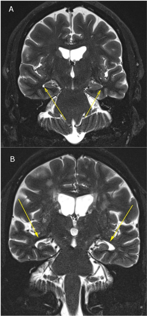 3T MRI of inferior lateral ventricular enlargement due to temporal lobe atrophy; (2a) Normal inferior lateral ventricular size in 55-year-old; (2b) Severely enlarged inferior lateral ventricles due to temporal lobe atrophy in 68-year-old male.