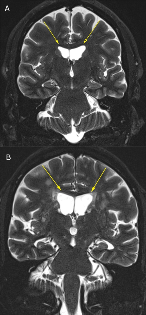 3T MRI of lateral ventricular enlargement due to central atrophy; (3a) Normal lateral ventricular size in 55-year-old male; (3b) Moderately enlarged lateral ventricles due to central atrophy in 68-year-old male.