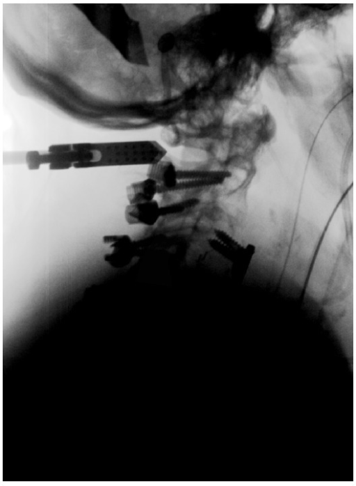 Lateral fluoroscopic view depicting the contrast delivery into the cervical spinal canal.