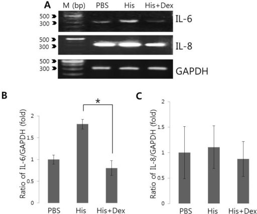 Effects of dexmedetomidine on histamine-induced IL-6 and IL-8 mRNA expression. (A) After pre-treatment with 100 ng/mL dexmedetomidine (Dex) for 30 min, HeLa cells were stimulated with PBS and 100 nM histamine (His) for 90 min and then total RNA was extracted and amplified with primers specific for IL-6, IL-8, and GAPDH. Data are from one of experimental replicates. IL-6 (B) and IL-8 mRNA (C) expressions were quantified after normalizing to GAPDH levels as a loading control (n=6 and n=3, respectively). Results are the means±SEMs of independent experiments. M: DNA ladder (bp), PBS: phosphate buffered saline. *p<0.01 was considered statistically significant.