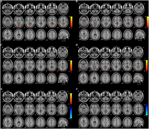 Maps of fALFF differences.A: SUC vs. control. Compared with healthy controls, the SUC patients showed significantly increased fALFF values in the warm color regions, including the bilateral cuneus, bilateral lingual gyrus, bilateral superior/middle/inferior occipital gyrus, and right posterior cingulate. B: SUC vs. SC. Compared with SC patients, the SUC patients showed significantly increased fALFF values in the warm color regions of the bilateral cuneus, bilateral lingual gyrus, bilateral middle temporal-occipital area, and right fusiform gyrus. C: DR vs. controls. The DR patients showed significantly increased fALFF values in the warm color regions of the bilateral cuneus, bilateral middle occipital gyrus, bilateral fusiform, and right middle temporal-occipital area. D: DR vs. WH. Compared with WH patients, the DR patients showed significantly increased fALFF values in the warm color regions of the left cuneus, bilateral fusiform, and right middle occipital gyrus. E: SC vs. CON. Compared with the healthy controls, the SC patients showed significantly increased fALFF values in the warm color region of the left inferior occipital gyrus. In contrast, the cold color regions in the right fusiform gyrus represent the area with decreased fALFF values in SC patients compared with controls. F: WH vs. CON. The WH patients showed only showed decreased fALFF values in the cold color region of the right fusiform gyrus. The statistical threshold was set at P < 0.05 with a cluster size > 351 mm3, which corresponded to a corrected P < 0.05.