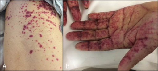 Palpable, purpuric rash on the patient's (A) right thigh and torso and (B) hand.