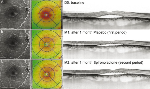 Follow-up of Patient 2, treated with placebo on the first period. She showed a decrease of SRF under placebo at D30 (A and B) and a slight SRF increase after 1 month of spironolactone treatment (C). For each time point, fluorescein angiography images taken at late stage (5 minutes) (left panel) are shown, together with the ETDRS grid (middle panel) and an enhanced depth imaging scan (right panel).