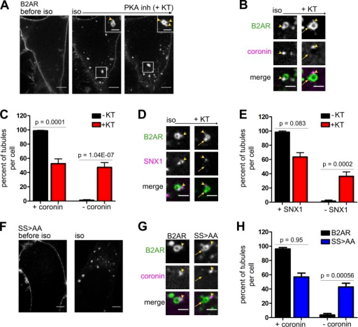B2AR phosphorylation at S345 and S346 restricts B2AR to ASRT endosomal microdomains. (A) Images of iso-induced B2AR endocytosis and PKA inhibition. Before iso, B2ARs localize to the cell surface. 5 min after iso, B2AR redistributes to endosomes and is sorted into tubules (arrowheads). KT was added 5 min after iso. Bars: (main images) 5 µm; (insets) 2 µm. (B) Example images of B2AR and coronin (ASRT marker) with iso and KT. KT causes B2AR to enter non-ASRT domains. (C) Quantitation of percent B2AR in ASRT and non-ASRT tubules. n = 31 (−KT, iso) and 14 (KT) cells. (D) Example images of B2AR and SNX1 (ASRT marker) with iso and KT. (B and D) Arrowheads show B2AR in ASRT domains, and arrows show B2AR in non-ASRT domains. Bars, 2 µm. (E) Quantitation of the percent B2AR in ASRT and non-ASRT tubules. n = 11 (−KT, iso only) and 18 (+KT, PKA inhibited) cells. (F) 5 min after iso, SS>AA also localized to endosomes and tubules. Bars, 5 µm. (G) Example images of B2AR and SS>AA with coronin. SS>AA localizes to both ASRT domains (arrowheads) and constitutive tubules (arrows). Bars, 2 µm. (H) Quantitation of percent B2AR and SS>AA ASRT tubules. SS>AA localizes to both ASRT and non-ASRT tubules. n = 13 (B2AR) and 14 (SS>AA) cells. Error bars in all graphs are SEM across cells.