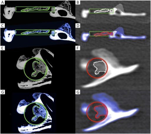 2D coronal (A—D) and sagittal (E—H) μCT (left column) and MDCT (right column) images (A, B, E and F) and corresponding colour-coded illustrations (C, D, G and H) of the CSD region.The newly formed woven bone is shown in dark (blue), and the original cortical bone is shown in bright (white). Within the former cylindrical defect of 5 mm (VOI), the ROI is illustrated.