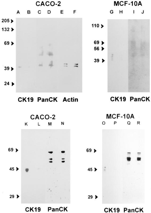 Immunoblot of cytoskeletal components in cells continuously kept in random (A, C, E, G, and I), A19 (B, D, F, H, and  J), random/2 (K, M, O, and Q), or A19/2 (L, N, P, and R) oligonucleotides. CACO-2 (A–F and K–N) and MCF-10A (G–J and  O–R) cells were grown on 24-mm Transwell™ filters and extracted/scrapped from the filter in EB-TX- 100. The pellets were  further extracted in SDS sample buffer, and samples from equivalent numbers of cells were run in SDS-PAGE ( the protein in  each sample was measured in a small aliquot and the sample volume adjusted to seed 4 μg of protein in all lanes; usually these adjustments represented variations in sample volumes that were  <10% of the total volume) and immunoblotted onto nitrocellulose filters. The blots were processed for indirect chemiluminescence using an anti-CK19 mAb (RCK108; A, B, G, and H). The  same nitrocellulose sheets used for A, B, G, H, K, L, O, and P were  then stripped in SDS/2-mercaptoethanol and reprobed with antiPancytokeratin mAb (AE1/AE3; C, D, I–J, M, N, and O–R). The  same filter from CACO-2 extract was stripped and reprobed one  more time with anti-actin mAb (C4; E and F). Notice the decrease in CK19 bands in A19 treated cells (B and H) as compared  with the control with random oligonucleotide (A and G), and that  other cytokeratins and actin in the same samples were not  changed (C–F, I, and J). The average OD measures obtained from  unfiltered digitized images after subtracting background from the  average pixel value over the main band of each lane were as follows (scale 0–255): (A) 82; (B) 12; (C) 77; (D) 100; (E) 91; (F) 81;  (G) 30; (H) 6; (I) 28; (J) 21; (K) 150; (L) 27; (M) 171; (N) 172; (O)  49, (P) 5; (Q) 160; (R) 174. The apparent molecular weight of  standards is expressed in kD.