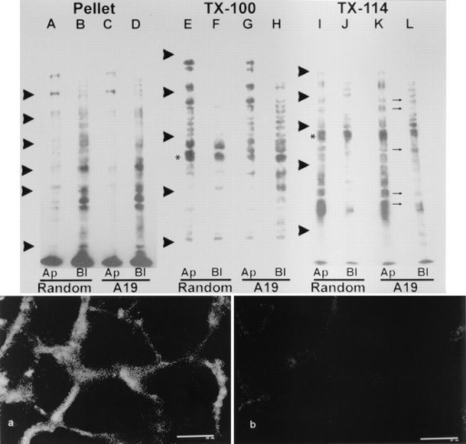 Effect of antisense  A19 oligonucleotide on the  polarity of plasma membrane  proteins in CACO-2 cells  C2BBe1. The cells were continuously grown in random  (lanes A, B, E, F, I, and J;  control) or antisense A19  (lanes C, D, G, H, K, and L)  oligonucleotides. For these  experiments, the cells were  plated on 24-mm TranswellTM  filters and cultured at confluency for 9 d. The monolayers  were biotinylated from either  the apical side (lanes A, C, E,  G, I, K; Ap) or from the basolateral side (lanes B, D, F,  H, J, L; Bl). Then, the filters  were extracted in ice-cold  PBS-EDTA supplemented  with 2% Triton X-114. The  supernatant of this extraction  was warmed to 30°C for 3 min,  and the detergent phase was  acetone precipitated and run  in SDS-PAGE (lanes I–L;  TX-114). The pellets from the  TX-114 extraction were then  resuspended in PBS-EDTA,  1% Triton X-100 by sonication, and warmed up to 37°C  for 15 min. The supernatants  (lanes E–H; TX-100) and pellets (lanes A–D; Pellet) of this  second extraction were also  run in SDS-PAGE. In all cases the total amount of protein was measured to ensure that all lanes for a given extraction procedure were  seeded with the same amounts of cellular material. All the lanes were blotted onto nitrocellulose sheets and probed with streptavidin–peroxidase and a chemiluminescence reaction. The small arrows between K and L point at apical bands now appearing also in the basolateral labeled set of proteins. The arrowheads indicate the position of molecular weight standards: (lanes A–D) 193, 112, 86, 70, 57, and 36  kD; (lanes E–L) 205, 116, 66, 45, and 29 kD. All the blots are from the same experiment, although, for technical reasons, they were run  in separate gels with two different sets of molecular weight standards. Biotinylation control: CACO-2 C2BBe monolayers were grown  on filters, incubated in A19, and biotinylated as described above. The cells were extensively washed, fixed in PFA, and processed with  fluorescein-coupled streptavidin from both sides of the filter. Optical confocal sections were taken at the transnuclear plane (a) or at the  apical membrane plane (b). Bars, 10 μm.