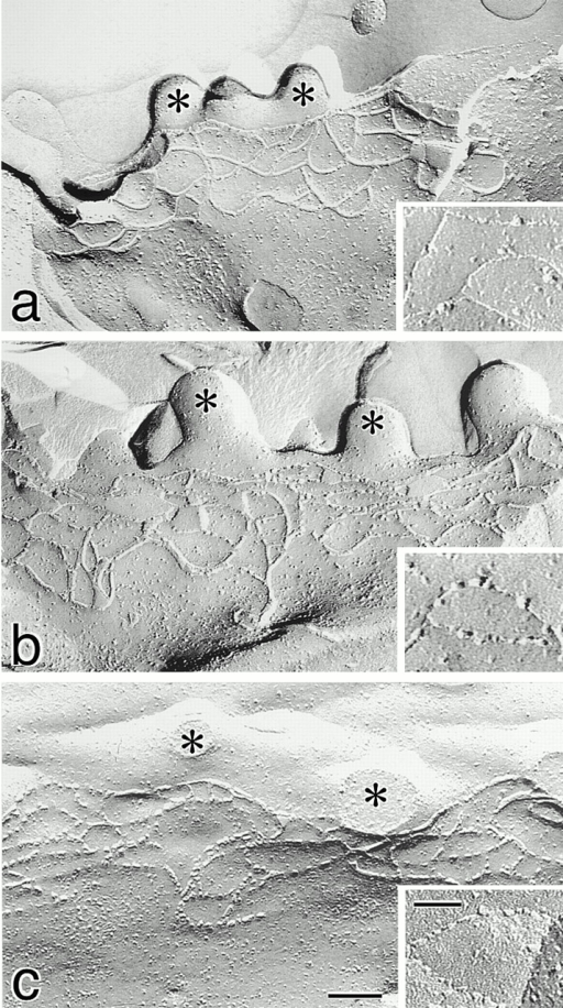 Freeze-fracture replica images of TJs in neo-MDCK I (a), dCL2-MDCK I (b), and MDCK II cells (c). Cells (4 × 105 cells) were plated on 24-mm filters, cultured for 6 d, fixed with glutaraldehyde, and then processed for freeze-fracture replica electron microscopy. The number of TJ strands in neo-MDCK I cells was similar to those in dCL2-MDCK I as well as MDCK II cells (Table ), and the network pattern of TJ strands in neo-MDCK I cells did not appear to be more complex than that in dCL2-MDCK I or MDCK II cells. In neo-MDCK I cells (a), TJ strands were largely associated with the P-face and were mostly continuous, and on the E-face (inset) complementary continuous grooves were vacant. In dCL2-MDCK I cells (b), TJ strands were fairly discontinuous on the P-face, and on the E-face (inset) intramembranous particles were scattered within the grooves. The strands (c) and grooves (inset) of MDCK II cells were similar in appearance to those in dCL2-MDCK I cells. *Microvilli. Bar, 100 nm; inset, 50 nm.