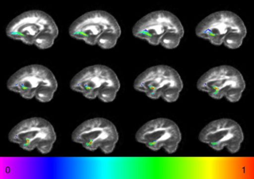Average reconstruction of the uncinate fasciculus in controls. The map was obtained by averaging a binary mask of the tract for every subject after normalisation. The colour scale indicates the degree of overlap between subjects. '0' represents minimal overlap, '1' represents maximal overlap.