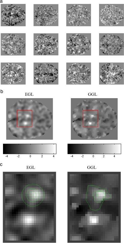 Real data: twelve contrast images of a slice showing bilateral response in posterior cingulated gryi (pCG) during a study of coherent motion (Harrison et al., 2007). (a) Twelve samples (b) estimated conditional means using EGL and GGL (left and right). (c) Inset of panel b with contour plot of a local diffusion kernel overlaid. Distinguishing borders between regions of high/low parameter estimates is difficult due to smoothing by the EGL. However, borders are easily seen on the right. (d) Posterior probability maps; where white regions indicate p(w > 0.5) > 0.95. (e) Inset of panel d for GSP, EGL and GGL. Active regions using EGL are characterized by rounded edges, i.e., blobs, while for GGL the shape of bilateral response are elongated in fitting with the anatomy of pCG, (f–h) surface plots of conditional means from inset. Note vertical scale, especially for GSP, which shows large shrinkage compared to EGL and GGL, (i and h) graph plot (gplot.m) of second and third eigenvectors of EGL and GGL. Heterogeneous graph weights of GGL are easily observed compared to EGL.
