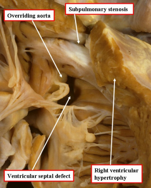 An autopsied specimen has been opened through the anterior wall of the right ventricle to show the cardinal features of tetralogy of Fallot.