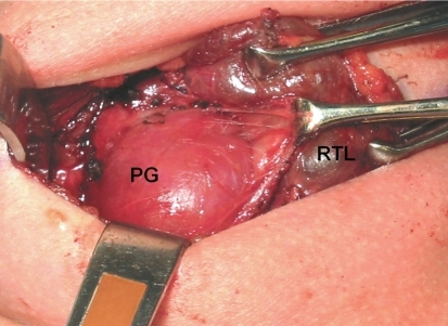 Intra-operative view of the paraganglioma (PG), which is being dissected from the right thyroid lobe (RTL)