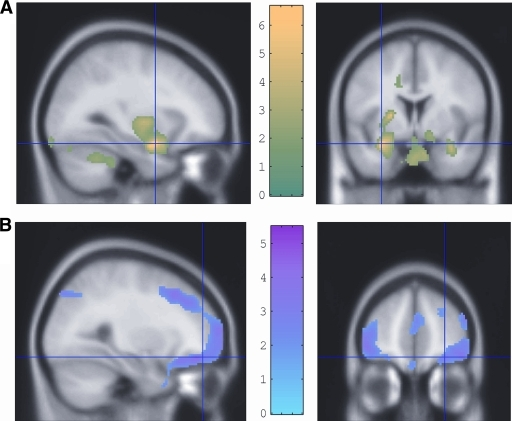 Regions of enhanced 18-fluoro-deoxy-glucose uptake during hypoglycemia displayed on magnetic resonance imaging brain slices. A: Relatively greater 18-fluoro-deoxy-glucose uptake in amygdala, cerebellum, and brainstem in people with type 1 diabetes and hypoglycemia awareness than in people with type 1 diabetes and hypoglycemia unawareness, consistent with a greater anxiety and vigilance response in the former. B: Relatively reduced 18-fluoro-deoxy-glucose uptake in the right lateral orbitolfrontal cortex in people with good awareness of hypoglycemia compared with those who are unaware. The reduced activation of this brain region in those with awareness suggested by these data is compatible with the recognition of the unpleasantness or danger of the stimulus encouraging behavior to avoid hypoglycemia in future. This seems to be significantly less effective in those who are unaware. Reprinted with permission from Mason et al. (28).