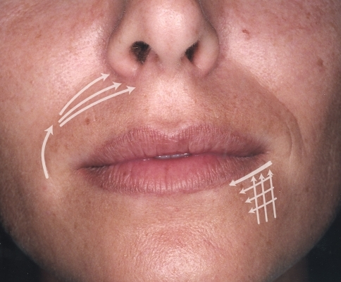 The nasolabial fold can be divided in three regions: The upper subnasal triangle must be treated with a fanning technique. The corners of the mouth and marionette lines are treated with a superficial criss-crossing technique ([2] with permission from Elsevier)