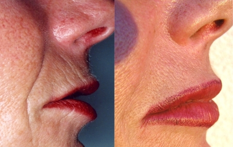 "Treating radial lip lines: Their lower half will disappear after simple injection of a horizontal strand into the ""empty pocket"" beneath the vermilion border. The upper half is treated with vertical strands"