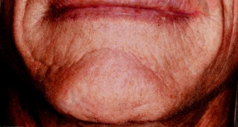 A deep horizontal chin fold was augmented with 0.8 ml of Artecoll in one session