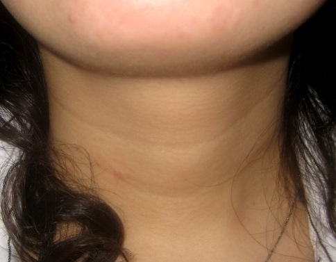 Horizontal neck folds in a young patient