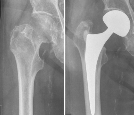 thesis on fracture neck femur