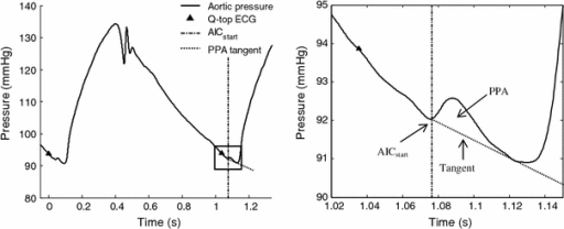 Example of an aortic pressure curve with the pressure perturbation enlarged on the right. AICstart (start of the arterially-detected isovolumic contraction) is indicated by the dash-dot vertical line and the preceding Q-top of the ECG by a triangle. The enlargement shows the touching tangent (dotted line) and the area between the pressure perturbation and this tangent (PPA)
