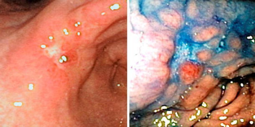 Advanced adenocarcinoma of stomach at angulus,Staged T3,N1. At left, standard vision: a flat reddened area surrounded by a swollen margin. At right, indigocarmine chromoscopy: a depression surrounded by multiple nodules, 15 mm in diameter. Not classified as a superficial lesion
