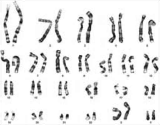 Karyogram showing the 48,XXYY karyotype