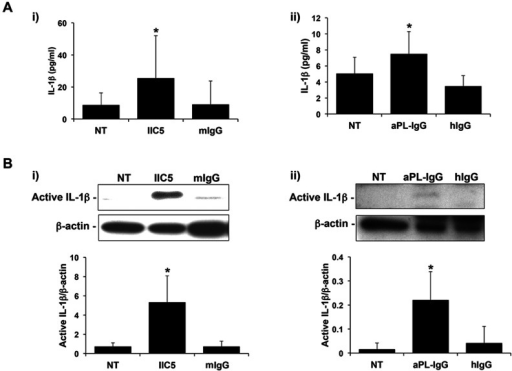 Antiphospholipid antibodies induce trophoblast IL-1β processing and secretion.Trophoblast cells were either not treated (NT) or treated with (i) the anti-β2GPI mAb, IIC5 (20 µg/ml) or mouse IgG1 control (mIgG; 20 µg/ml); or (ii) human aPL-IgG (500 µg/ml) or normal human IgG control (hIgG; 500 µg/ml) for 72 hrs. (A) Barcharts show levels of secreted IL-1β as determined by ELISA. Data are from 5 independent experiments. *p<0.01 versus the NT control. (B) Trophoblast cells were evaluated for active IL-1β (17 kDa) expression by Western blot (representative blots are shown). Barcharts below show quantification of protein expression as determined by densitometry and normalized to β-actin. Data are from 3 independent experiments. *p<0.05 versus the NT control.