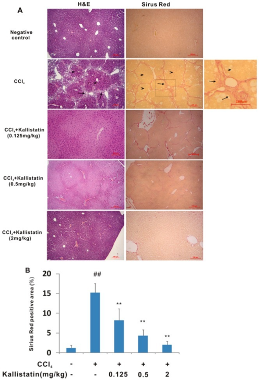 Kallistatin prevents CCl4–induced injury to hepatic structure in rats.(A) Representative images of H&E or Sirus red stained sections (original magnifications ×40). Hyperplastic proliferation of hepatocytes in nodular formations (arrowheaded) surrounded by fibrotic septa (arrowed). Scale bars = 100 µm. (B) Collagen deposition was evaluated by Sirius red staining and quantitated by image analysis. Data are expressed as mean±SD (n = 8). ## p<0.01 vs. negative control; * p<0.01 vs. model control group.