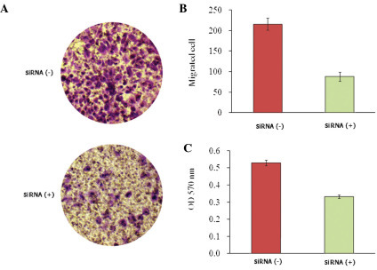Effect of KLF8 siRNA-expressing lentivirus treatment on Saos-2 cell invasion. (A) Crystal violet staining of cells which invaded through the polycarbonate membranes in the invasion assay. (B) The average number of migrated cells observed in each group. Saos-2 cell migration was found to be significantly decreased in the KLF8 siRNA treatment group. (C) Quantitative measurement of cell invasion using a spectrophotometer. Saos-2 cell invasion was found to be significantly reduced in the KLF8 siRNA treatment group. Values are presented as the mean ± standard deviation of three independent experiments. siRNA, small interfering RNA; KLF8, Krüppel-like factor 8.