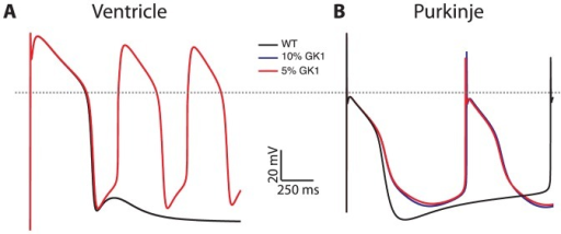 Arrhythmias in Andersen-Tawil syndrome, modeled as dominant negative suppression of IK1 current, have different mechanisms in VM (panel A) versus PF (panel B) myocytes.For VM, compared to WT (black trace) reduction of IK1 conductance by 90% (blue) leads to a large delayed afterdepolarization. Further reduction to 95% (red) increases the size of the DAD, triggering repetitive action potentials. For PF, reduction of IK1 conductance maximum diastolic potential is less polarized, leading to increased automaticity. Unstimulated PF APs show basic cycle length of automaticity of 2250 msec, which decreases to 1260 with 90% IK1 reduction.