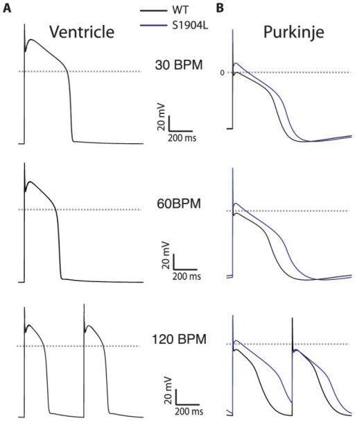 The S1904L mutation, characterized clinically by arrhythmia at low levels of exertion, simulated at clinically relevant pacing frequencies.The mutation exhibits minimal response in VM (panel A, traces overlap) and greater APD prolongation in PF (panel B), with APD alternans seen at 120 BPM (lower row). WT cells: black trace, S1904L: blue trace.