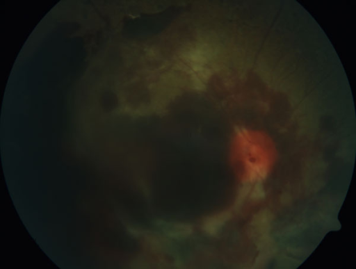 Fundus photography of huge retinal bleeding and retinal detachment in PDR